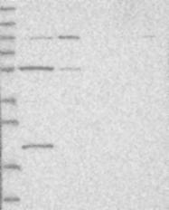 NBP1-80612 - SLC6A20