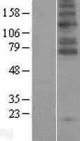 NBL1-16181 - SLC6A5 Lysate
