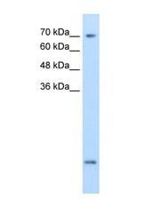 NBP1-60082 - SLC6A8