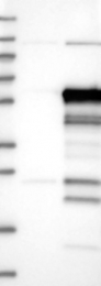 NBP1-82260 - SLC7A6OS