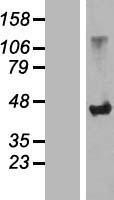 NBL1-16190 - SLC7A6OS Lysate