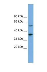 NBP1-59856 - SLC7A7