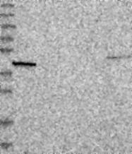NBP1-90664 - NHEDC1