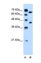 NBP1-59658 - SLCO1A2 / OATP1