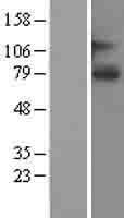 NBL1-16202 - SLCO1A2 Lysate