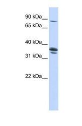 NBP1-59678 - SLCO3A1 / OATPD