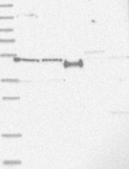 NBP1-80977 - SLCO4A1 / OATP1