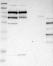 NBP1-81178 - SLFN5