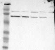 NBP1-84165 - SLITRK4