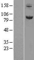 NBL1-16212 - SLITRK6 Lysate