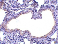 NBP1-76803 - Antileukoproteinase (ALP)
