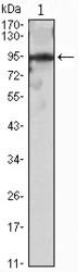 NBP1-47486 - SNAI2 / SLUG