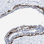 NBP1-87981 - Transgelin (TAGLN)