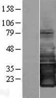 NBL1-12620 - SMAGP Lysate