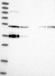 NBP1-83702 - SMAP1