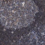NBP1-80737 - SMAP2