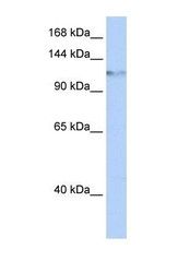 NBP1-57145 - SMARCA6 / HELLS