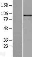 NBL1-11502 - SMARCA6 Lysate
