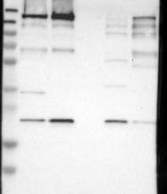 NBP1-85023 - SMARCAD1