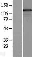 NBL1-16229 - SMARCAD1 Lysate