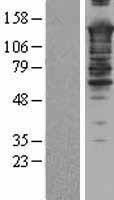 NBL1-16232 - SMARCC2 / BAF170 Lysate