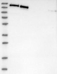 NBP1-90017 - SMARCC2 / BAF170