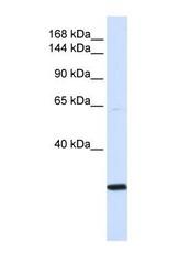 NBP1-52932 - SMC2 / CAPE