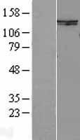 NBL1-16237 - SMC6L1 Lysate