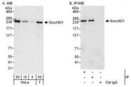 NBP1-49968 - SMCHD1