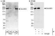 NBP1-49969 - SMCHD1