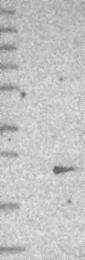 NBP1-81252 - SMCP