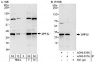 NBP1-47301 - SMNDC1