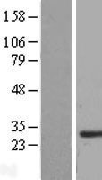NBL1-16245 - SMNDC1 Lysate