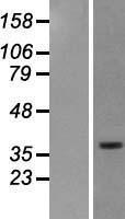 NBL1-16248 - SMOC2 Lysate