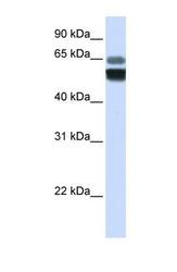 NBP1-69267 - SMPD1