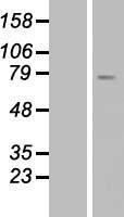 NBL1-16250 - SMPD1 Lysate
