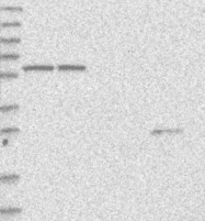 NBP1-88862 - SMPDL3A