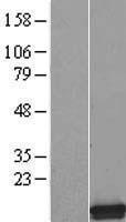 NBL1-16253 - SMPX Lysate
