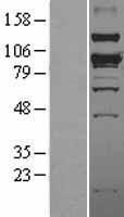 NBL1-16259 - SMURF1 Lysate