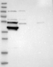 NBP1-83186 - SMYD2