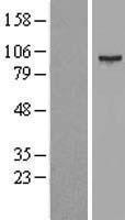 NBL1-16263 - SMYD4 Lysate
