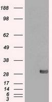NBP1-47991 - SNAI1