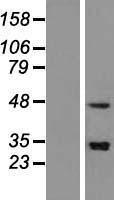 NBL1-16272 - SNAPC3 Lysate