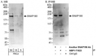 NBP1-71823 - SNAPC4 / SNAP190