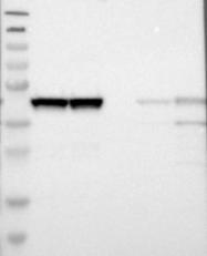 NBP1-90013 - SMARCB1