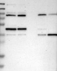 NBP1-90014 - SMARCB1