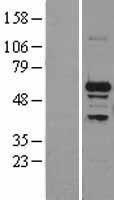 NBL1-16284 - SNRP70 Lysate