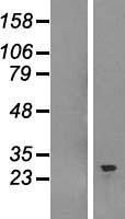 NBL1-16287 - SNRPB Lysate