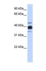 NBP1-57153 - hnRNP-C1/C2 / HNRNPC