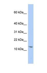 NBP1-57173 - snRNP-D2  / Sm-D2
